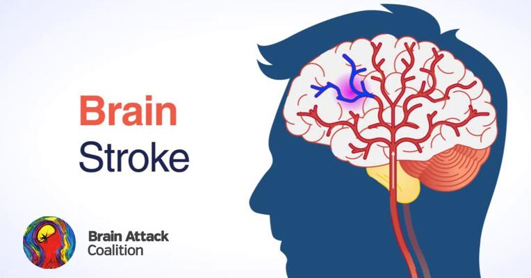 brain-stroke-order