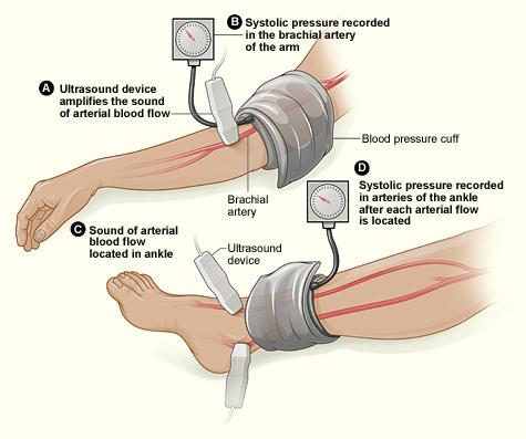 The ankle-brachial index (ABI) test.