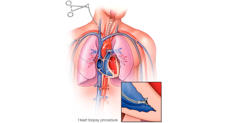 Heart-Biopsy