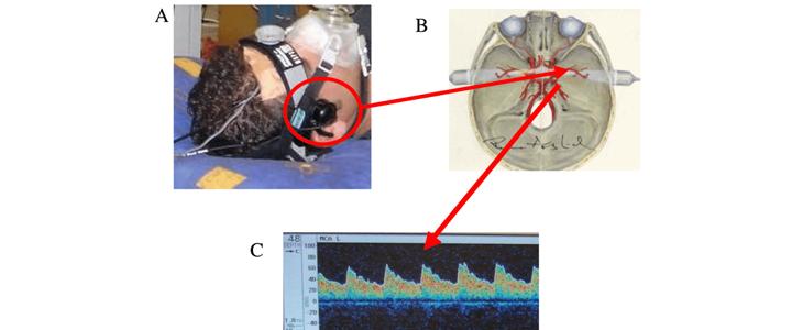 Transcranial Ultrasound