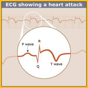 ecg-heart attack