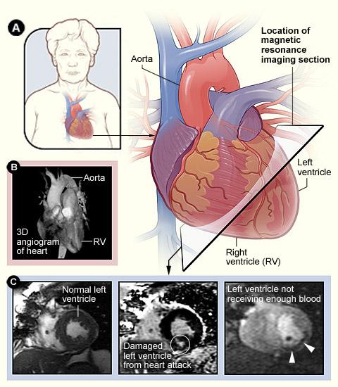 hf-diagnosis-mri-images-nhlbi
